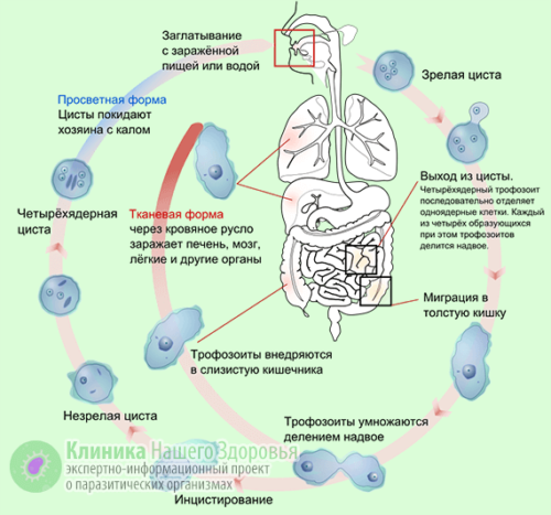 Амебиаз кишечника формы