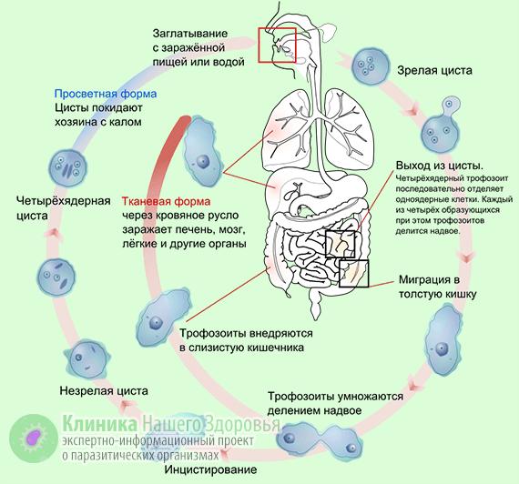 Амебиаз кишечника: формы и симптомы кишечного амебиаза, признаки и лечение