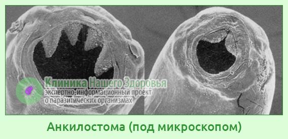 Анкилостома : симптомы и лечение анкилостомидоза у человека