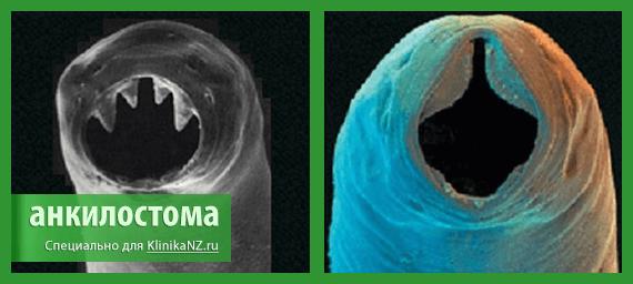 Анкилостомидоз: симптомы и лечение, особенности и развитие