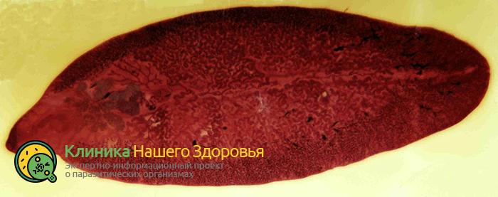 Печёночный сосальщик: жизненный цикл развития, диагностика и лечение