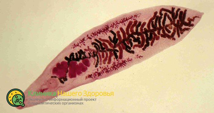 Плоские черви (сосальщики, трематоды): виды, особенности и лечение