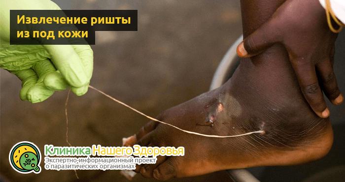 Черви под кожей человека: виды, симптомы, последствия и лечение