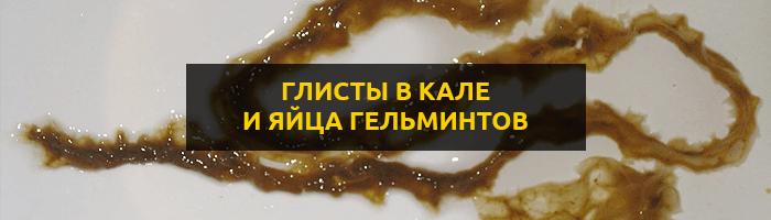 Глисты в кале: как выглядят яйца глистов и взрослые гельминты?