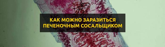 Печеночный сосальщик: как можно заразиться паразитом, лечение