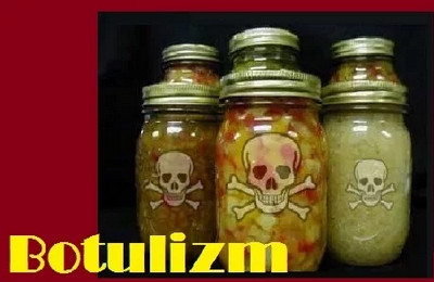ботулизм в грибах