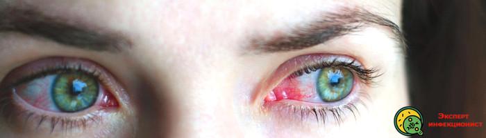 Photo of Что такое конъюнктивит, симптомы и лечение