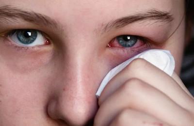 вирусный конъюнктивит симптомы