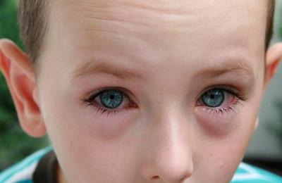 поллинозный аллергический окенъюнктивит