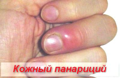 кожный панариций