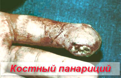 костный панариций