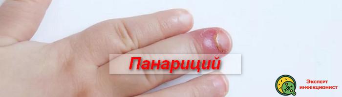 Photo of Панариций на пальце, лечение лекарствами и хирургическим путем
