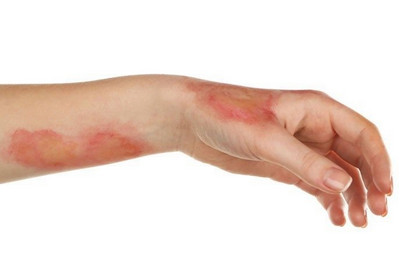 рожистое воспаление симптомы