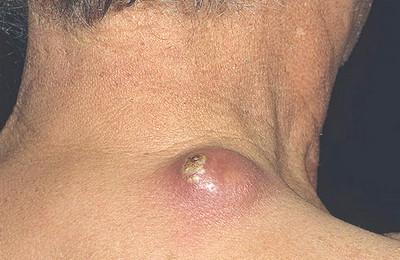 стадии развития фурункулов