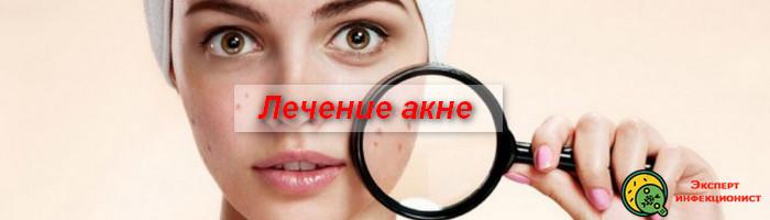 Photo of Лечение акне – схемы и рекомендации