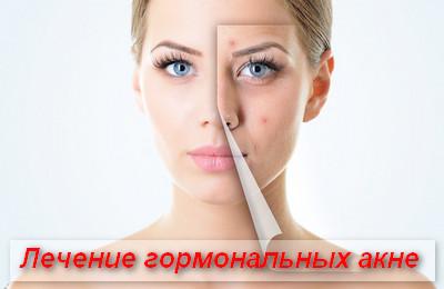 лечение гормональных акне