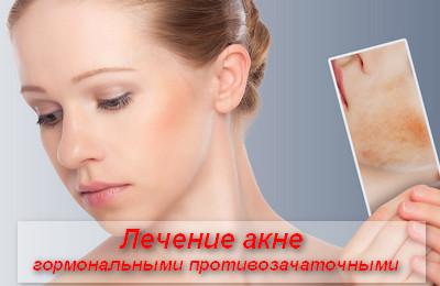 лечение акне гормональными противозачаточными