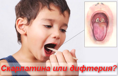 скарлатина или дифтерия