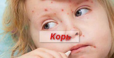 Photo of Корь – симптомы и лечение