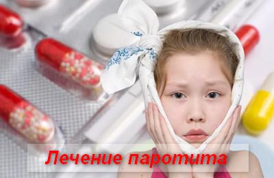 лечение паротита