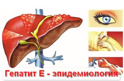 эпидемиология гепатита Е