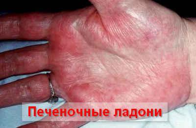 патогенз развития цирроза печени