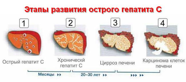 этапы развития острого гепатита С