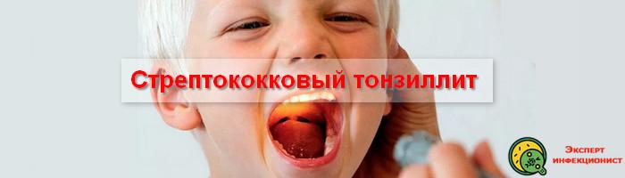 стрептококковый тонзиллит