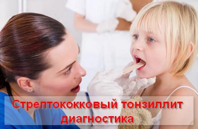стрептококковый тонзиллит диагностика