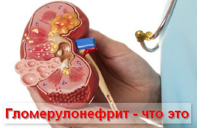 что такое гломерулонефрит