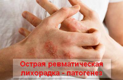 патогенез ОРЛ