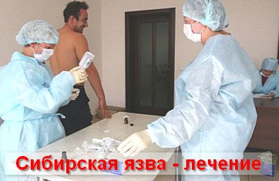 сибирская язва - лечение