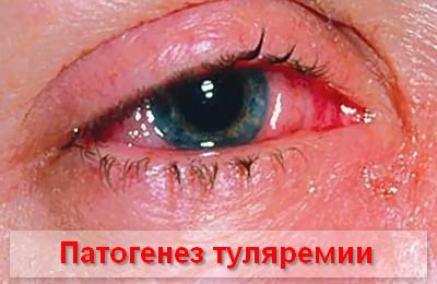патогенез развития туляремии