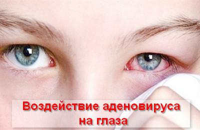 воздействие аденовируса на глаза
