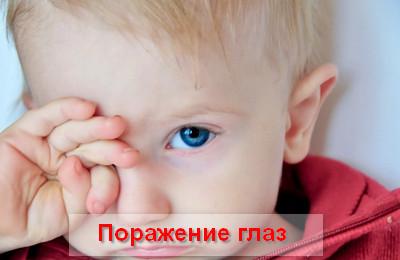 поражение глаз при аденовирусной инфекции