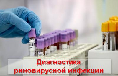 диагностика риновирусной инфекции