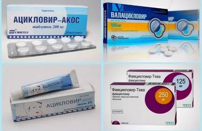 опоясывающий герпес препараты