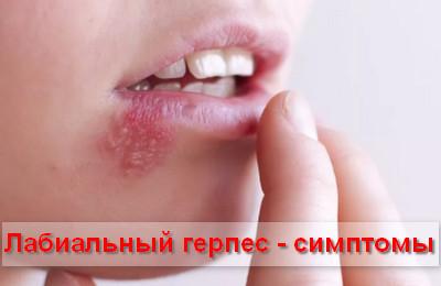 симптомы лабиального герпеса
