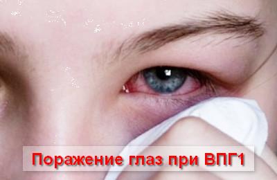 поражение глаз при ВПГ1