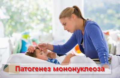 патогенез мононуклеоза