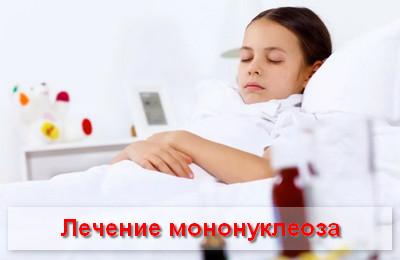 лечение мононуклеоза