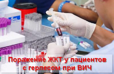 поражение ЖКТ у пациентов с герпесом при ВИЧ