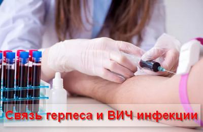 связь герпеса и ВИЧ инфекции
