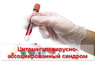 цитомегаловирусно-ассоциированный синдром