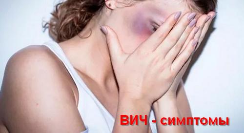 ВИЧ - симптомы