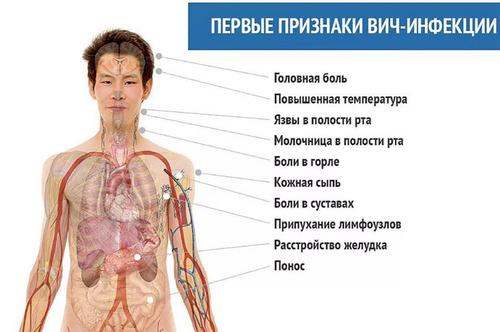 бессимптомная стадия ВИЧ