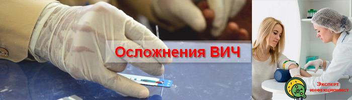 осложнения ВИЧ