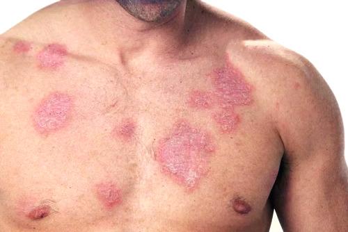 туберкулезные осложнения