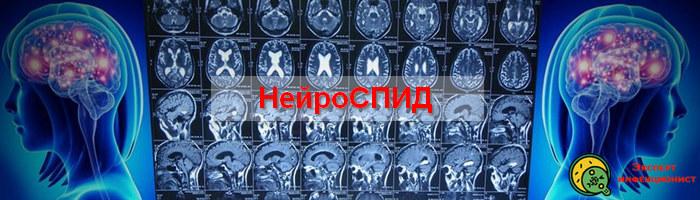 Photo of Что такое нейроСПИД, его особенности и опасность