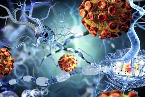 СПИД деменция - симптомы